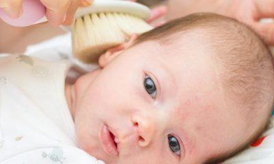Bebeklerde Konak Neden Olur? Nasıl Tedavi Edilir?