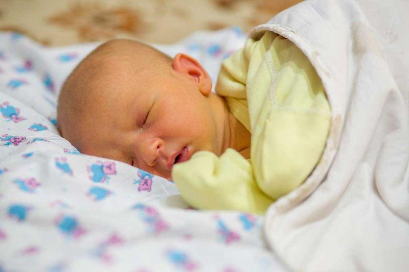 Bebeklerde Sarılık Belirtileri, Nedenleri ve Tedavisi